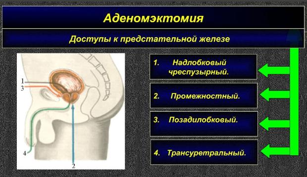 Доступы к простате при аденомэктомии