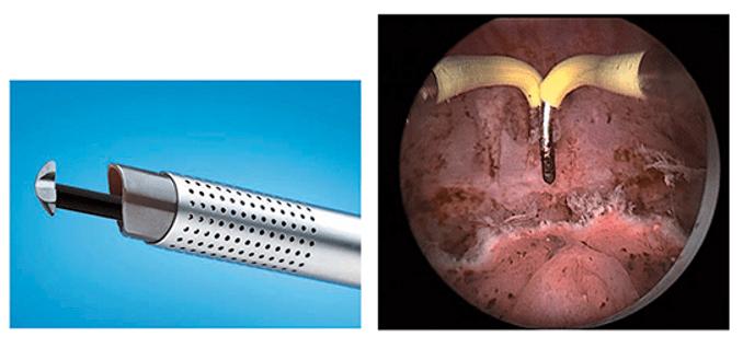 Монополярный электрод и клиническая картина рассечения тканей аденомы