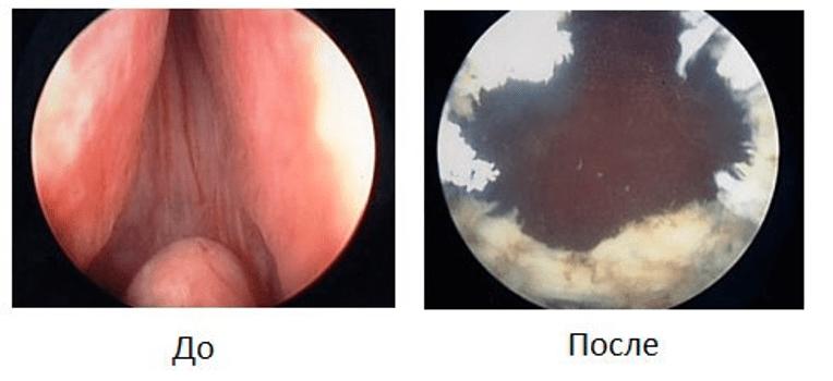 Просвет простатической части уретры