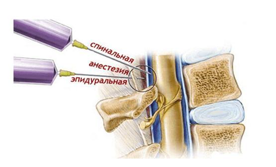 Схема проведения спинальной и эпидуральной анестезии