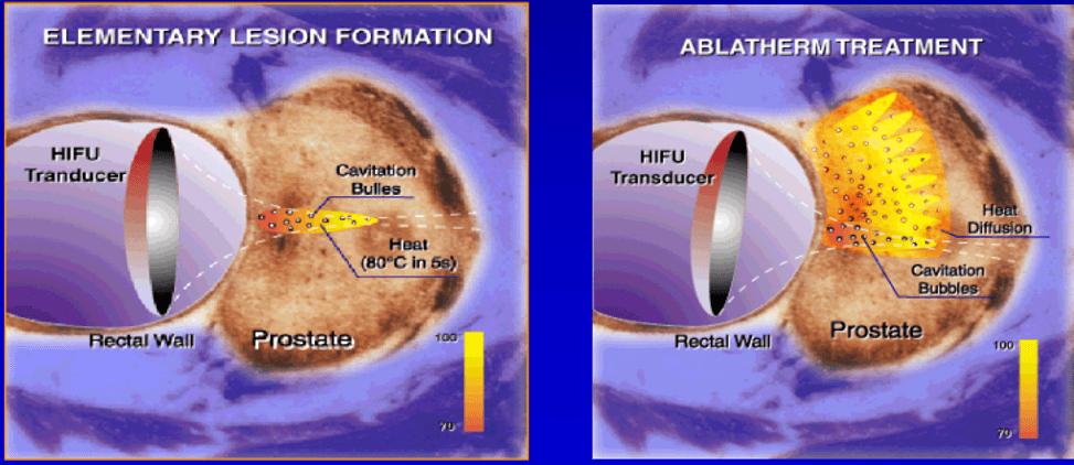 Схема воздействия ультразвуковых лучей 2