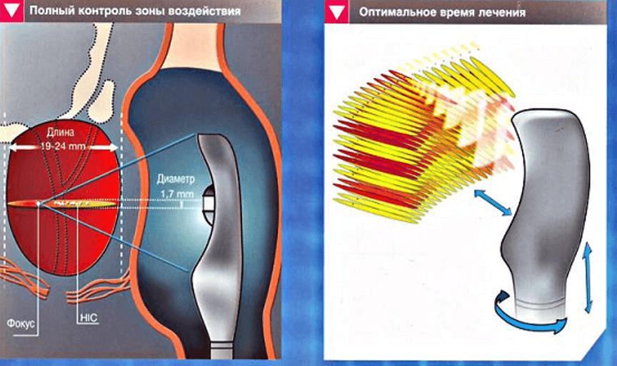 Схема воздействия ультразвуковых лучей
