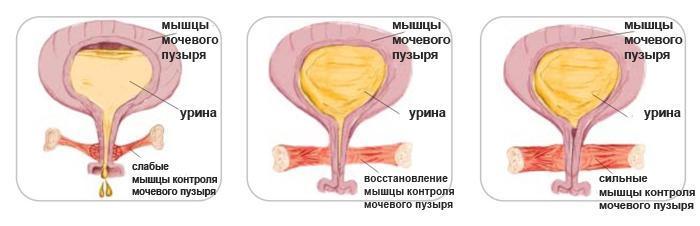 Мышцы мочеполовой диафрагмы до, в процессе и после регулярного выполнения упражнений