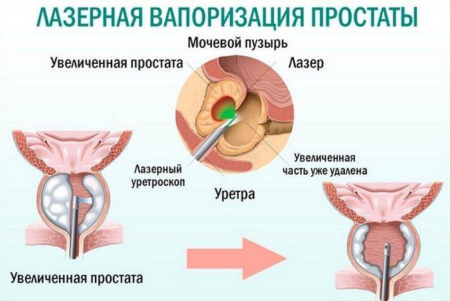 Ход операции лазерной вапоризации