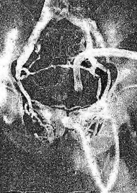 Расширенные вены тазового сплетения на флебограмме