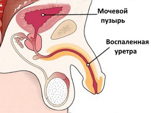 Воспаленная уретра при уретрите