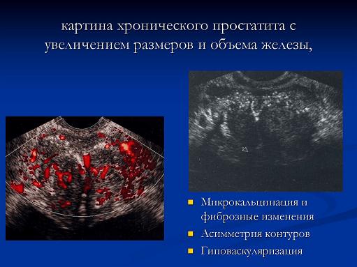 Картина хронического простатита на УЗИ