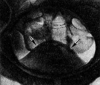 Пневмоцистограмма при аденоме (тень простаты обозначена стрелками)
