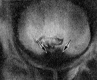 Пневмоцистоперицистография (стрелками обозначена раковая опухоль простаты)