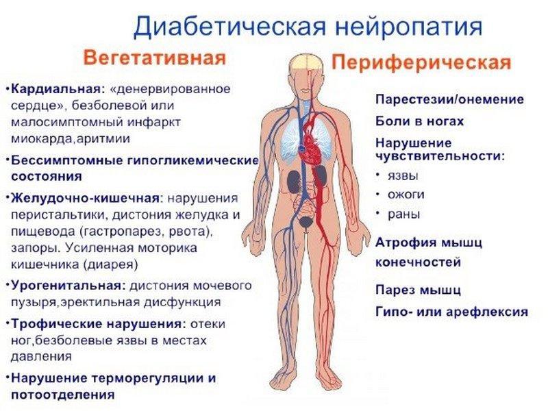 Признаки диабетической нейропатии