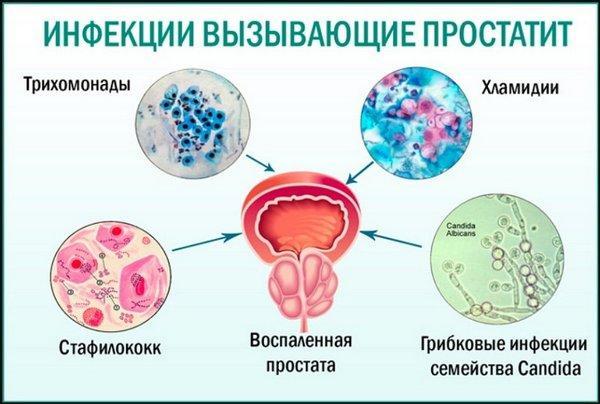 Инфекции вызывающие простатит