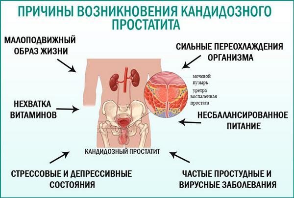 Причины кандидозного простатита