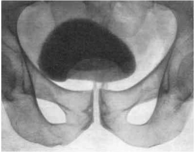 Аденома на цистограмме (дефект в виде холма)