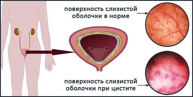 Поверхность слизистой оболочки при цистите