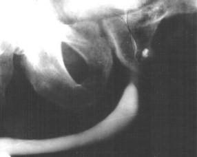 Каверна (темная капля) в простате на уретропростатограмме
