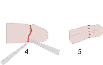 Схема обрезания с дорсальным разрезом