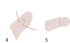 Схема обрезания с наложением зажима