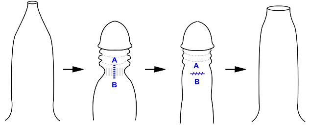 Схема пластики крайней плоти