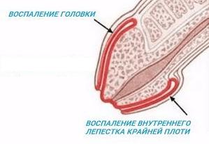 Воспаление головки и внутреннего лепестка крайней плоти