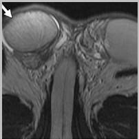 Орхоэпидидимит на МРТ (стрелкой обозначено воспаленное правое яичко, придаток выступает снизу)