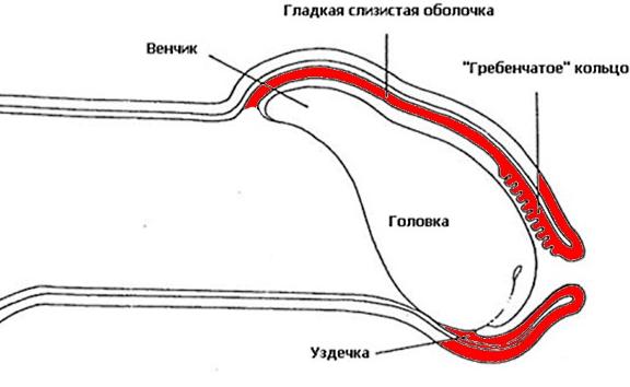 Постит (красным обозначен воспаленный листок крайней плоти)