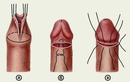 Схема проведения обрезания