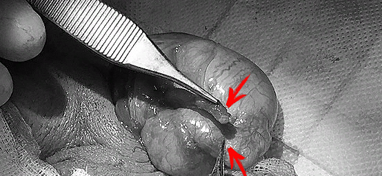 Сопоставление культи протока с областью сшивания (формирования анастомоза)
