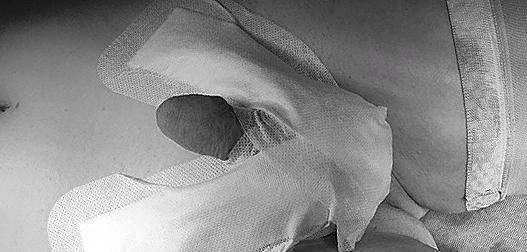 Вид после операции