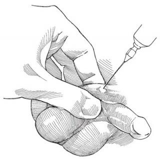 Блокада семенного канатика