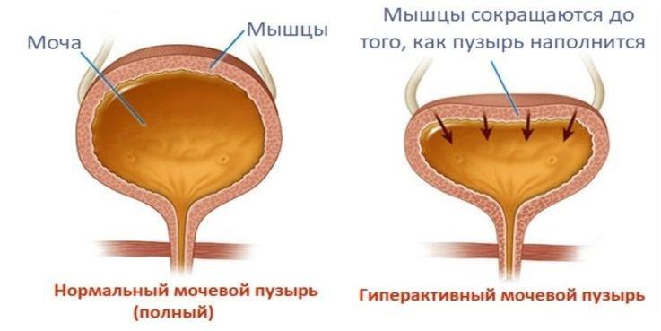 постуральный нейрогенный мочевой пузырь