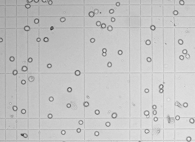 Клетки в камере Горяева