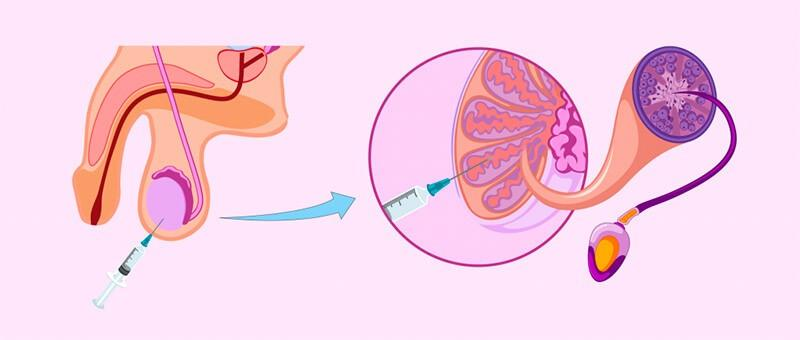 Схематическое изображение извлечения спермы из яичек при помощи биопсии