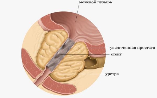 Уретральный стент