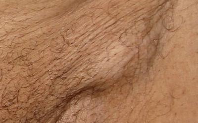Воспаленные паховые лимфоузлы на фото