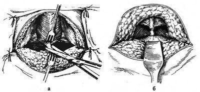 Вскрытие абсцесса через промежностный доступ: а – разрез сухожилий, б – получен доступ к напряженной простате