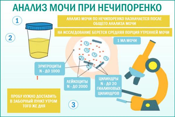 Схема сбора анализа мочи по Нечипоренко