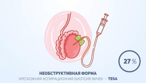 вероятность извлечения сперматозоидов различными методами биопсии