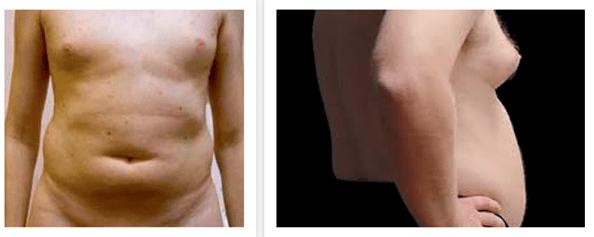 Слева направо: гипогонадизм при гиперпролактинемии и возрастной