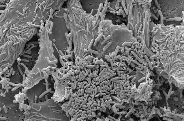Фото под микроскопом: хлопья смегмы с поселившимися на них микроорганизмами