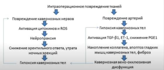 Механизм развития эректильной дисфункции после простатэктомии