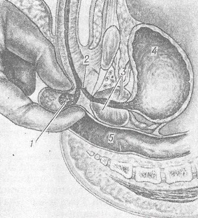 пальцевое исследование через анальное отверстие