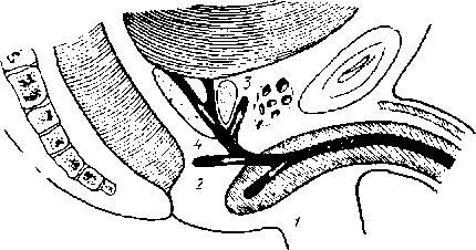 Ложные ходы в уретре, обозначены цифрами 1,2, 3, 4