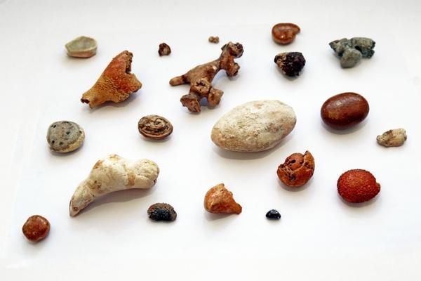 Камни из почек