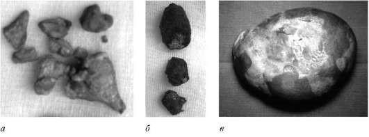 Камни, извлеченные из