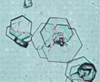 Кристаллы при цистинурии