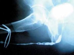 Нисходящая (микционная) уретроцистография уретры мужчины, страдающего облитерирующим ксеротическим баланопоститом
