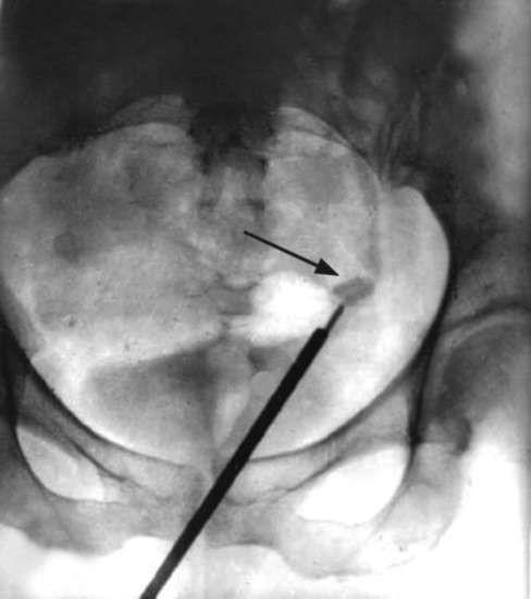 Обзорная рентгенограмма: контактное дробление