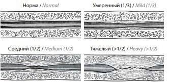 Стадии развития спонгиофиброза