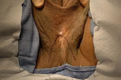 Устье уретры, выведенное в промежность