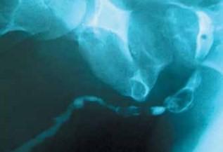Восходящая уретрограмма, на которой видно протяженное сужение мочевого канала, − результат многократного инструментального вмешательства